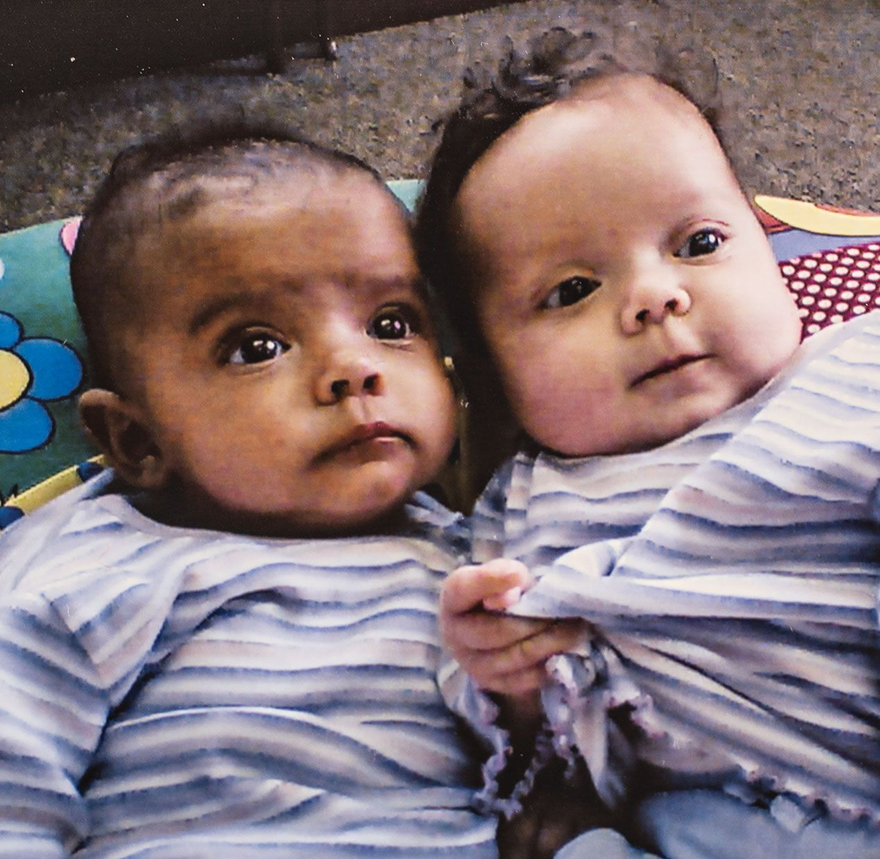 These twins one black and one white will make you rethink race national geographic