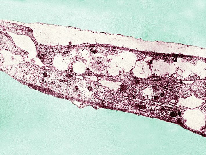 Treponema Pallidum can cause both yaws and syphilis. New genetic tests will allow researchers to distinguish ...