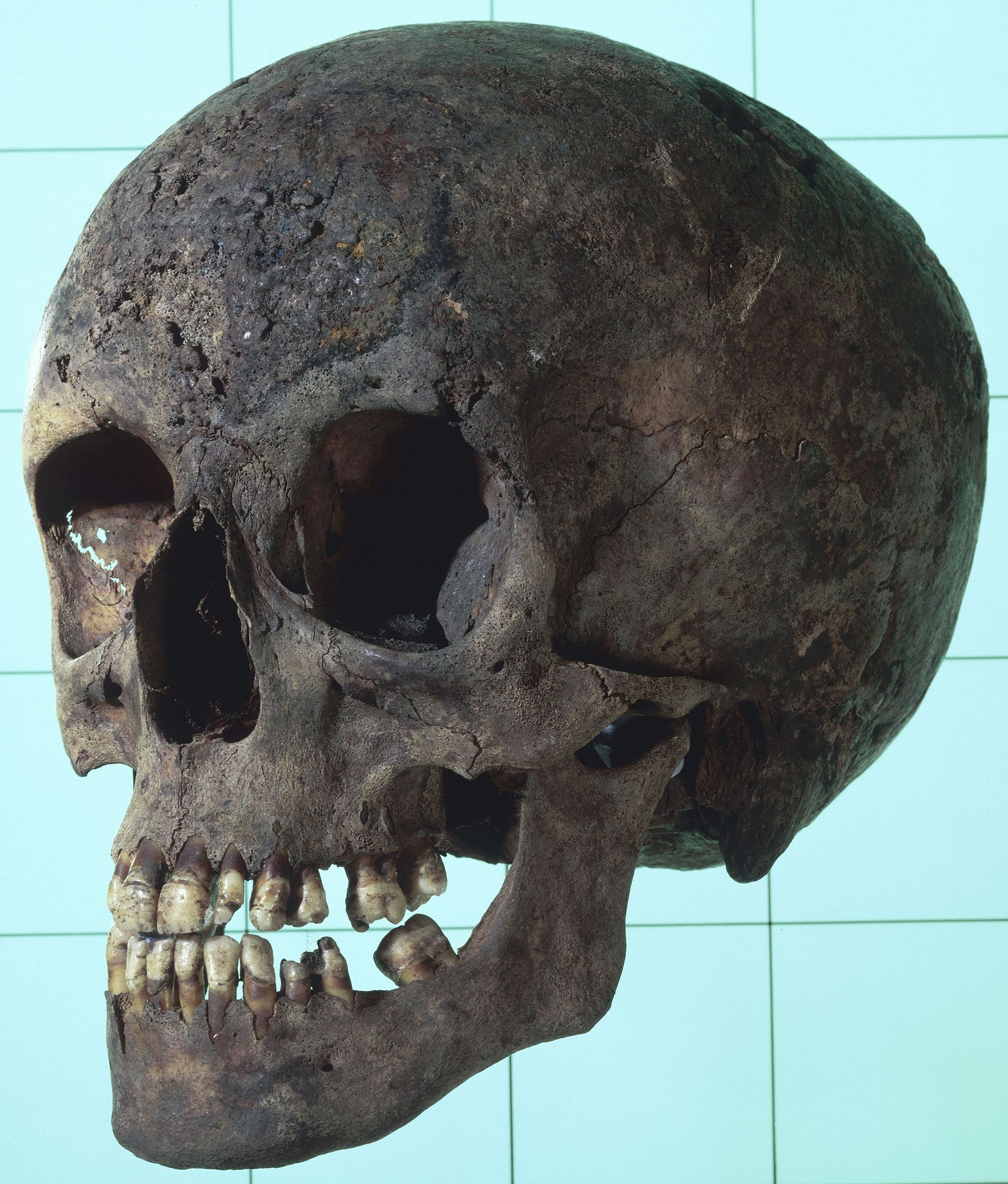 A female syphilitic skull with multiple erosive lesions. These lesions are key to identifying which individual's ...