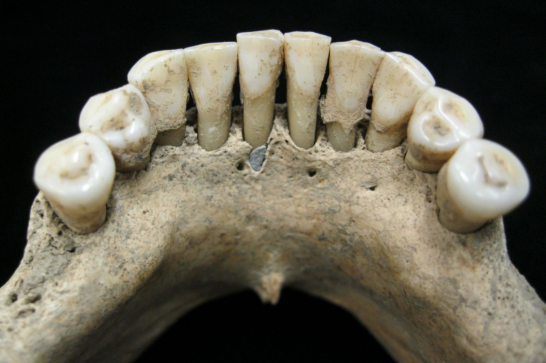 A particle of precious blue lapis lazuli is trapped in the fossilised dental plaque of a ...