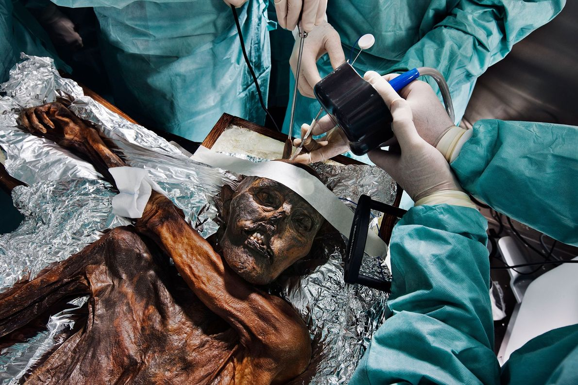 Examinations of Otzi under surgical conditions.