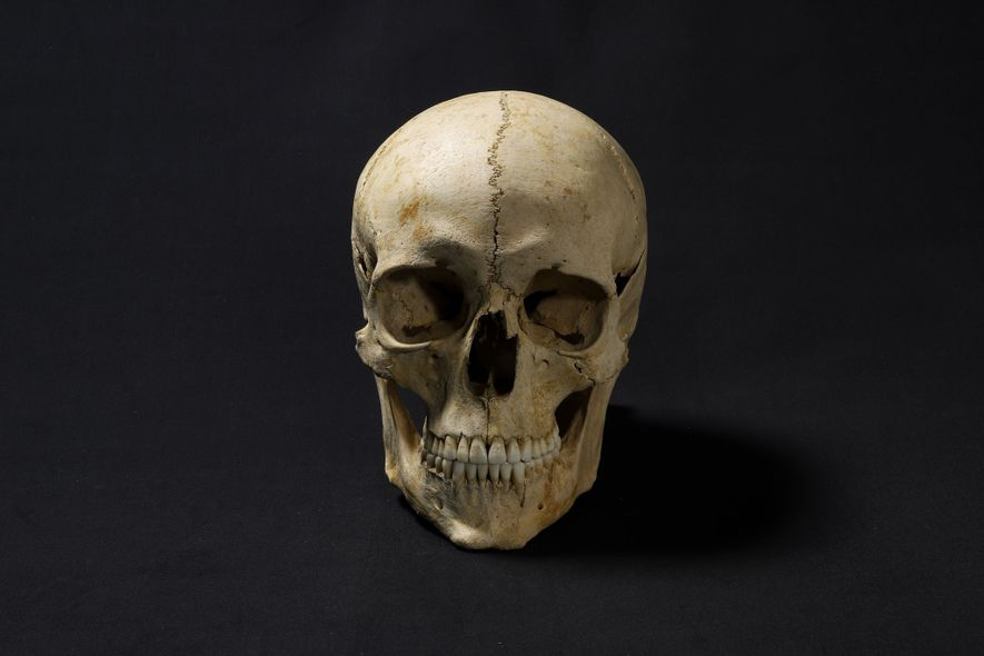 A 3D-printed copy of the skull was used as the base of the facial reonstruction. Adelasius had unusually good teeth for the time.