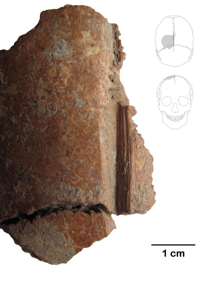 This skull fragment shows a deep incision made with a flint tool some 10,000 years ago.
