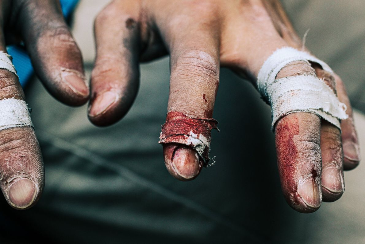 Your Shot photographer Sam Tippetts made this portrait after a rock-climber bandaged their bleeding fingers. He ...