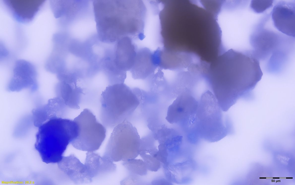 Thousands of lapis particles (magnified here) were discovered in the woman's mouth, probably the result of ...