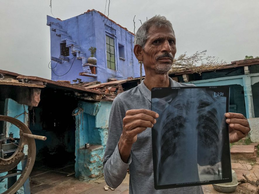 A deadly scourge ravages hard-rock miners in India