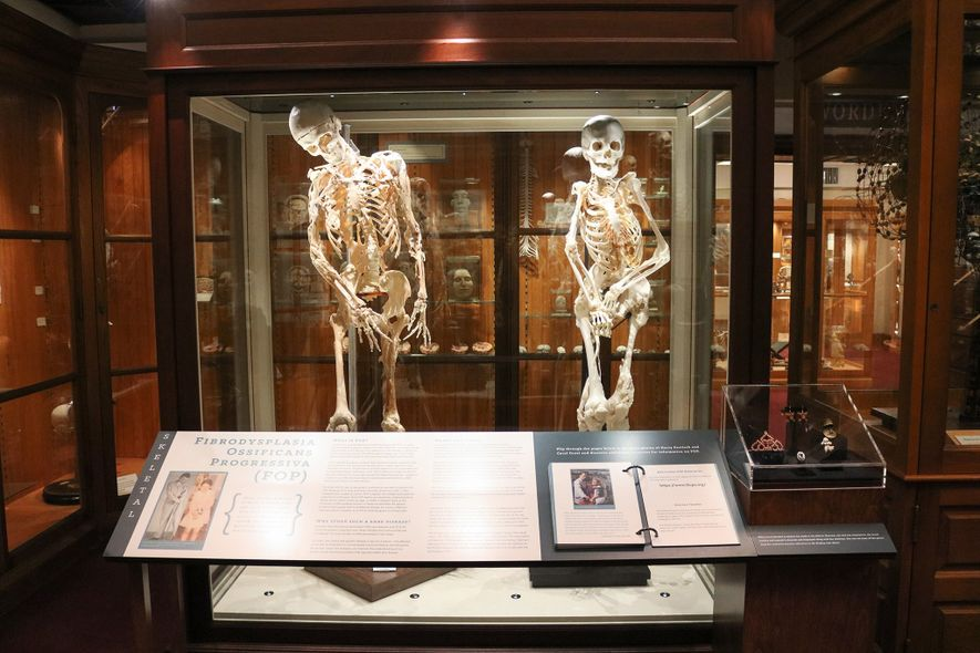 The skeletons of Harry Eastlack (left) and Carol Orzel are on display at the Mütter Museum ...