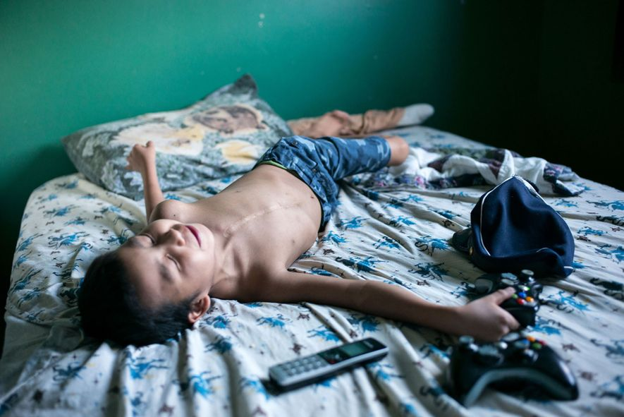 Dez, 7, plays in his bed in Fort McKay. Dez was born with an underdeveloped heart ...