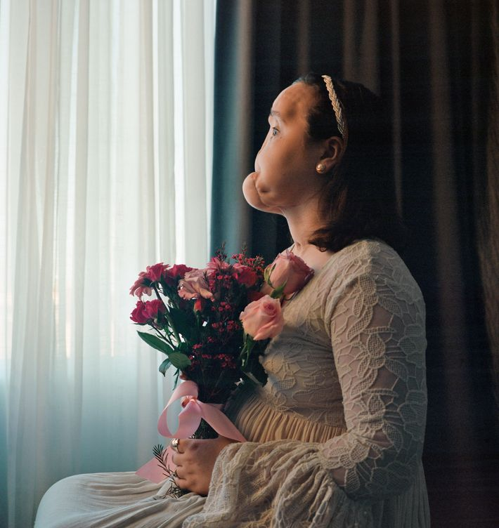 Before Katie Stubblefield had a face transplant, she posed for this portrait, showing her severely injured ...