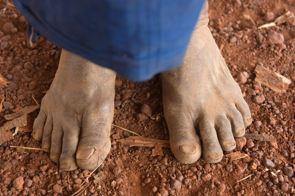 A person stands on the grounds of Yacouba Sawadogo's farm near the village of Gourga, Burkina ...