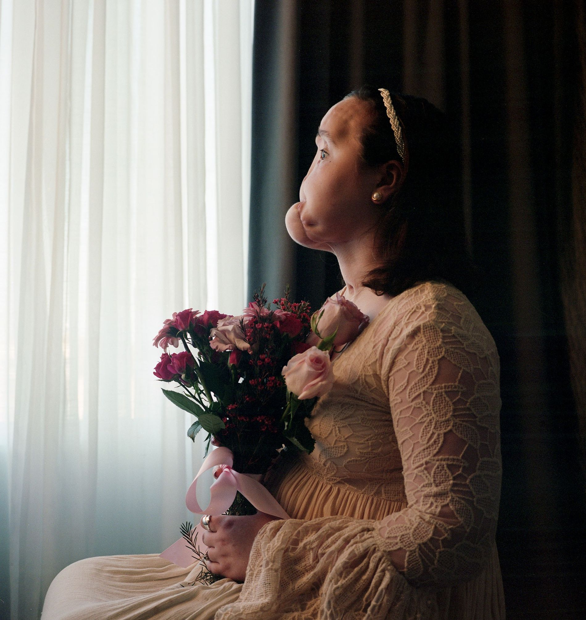 """Before Katie Stubblefield had a face transplant, she posed for this portrait. It shows her severely injured face—but photographer Maggie Steber also wanted to capture """"her inner beauty and her pride and determination."""""""