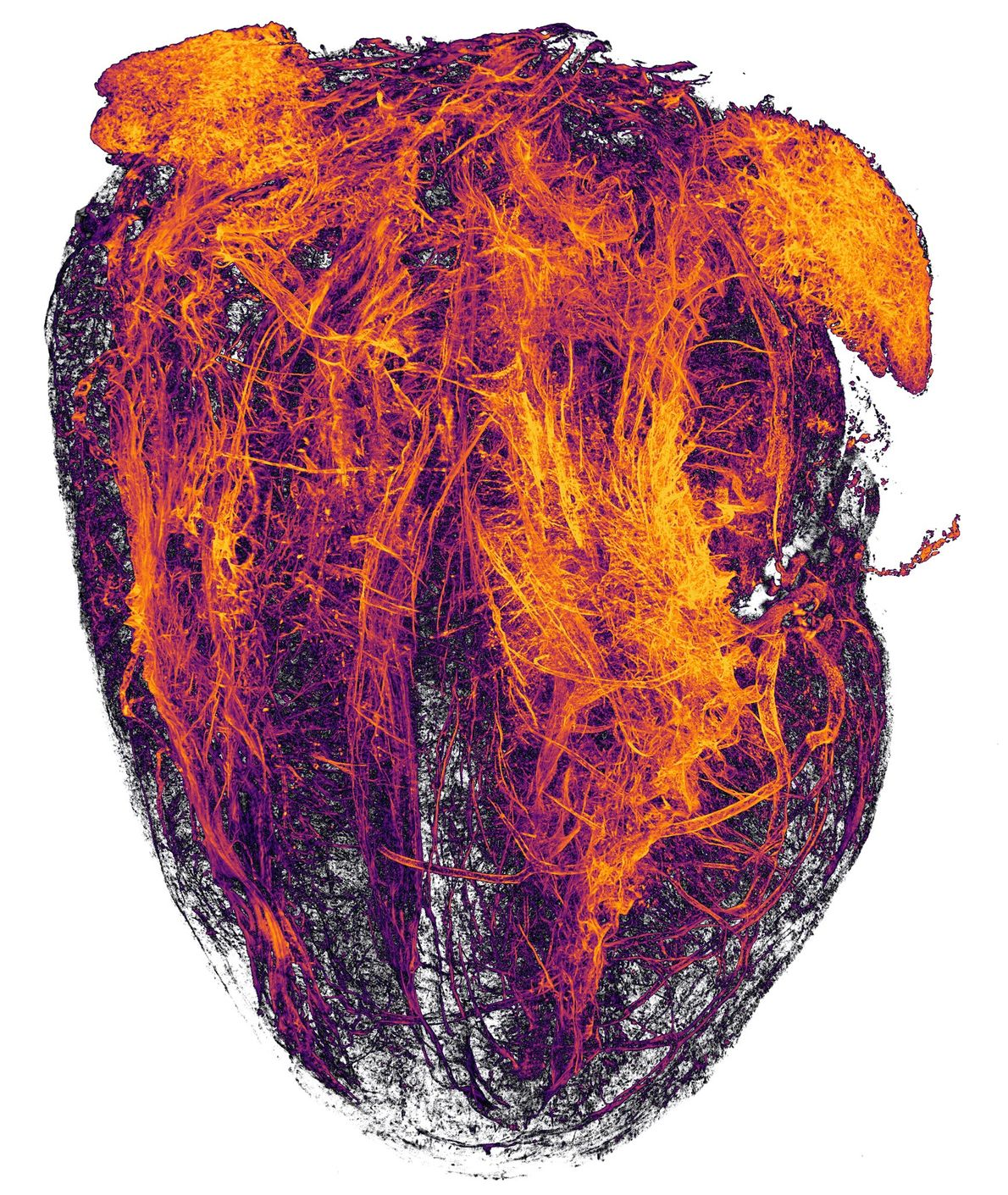 These fiery orange tendrils, imaged by University Hospital Essen researchers, are blood vessels from a mouse's ...
