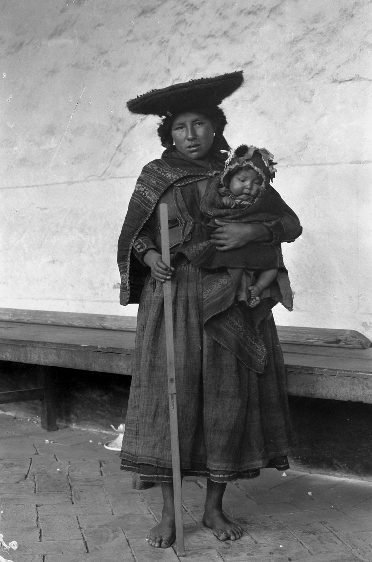 A mother holds her baby and a surgeon's yardstick while posing for a photo in Cuzco ...