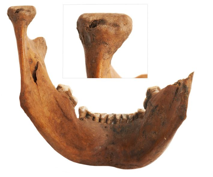 The jawbone of an adult male was found in an open pit with marks of dog ...