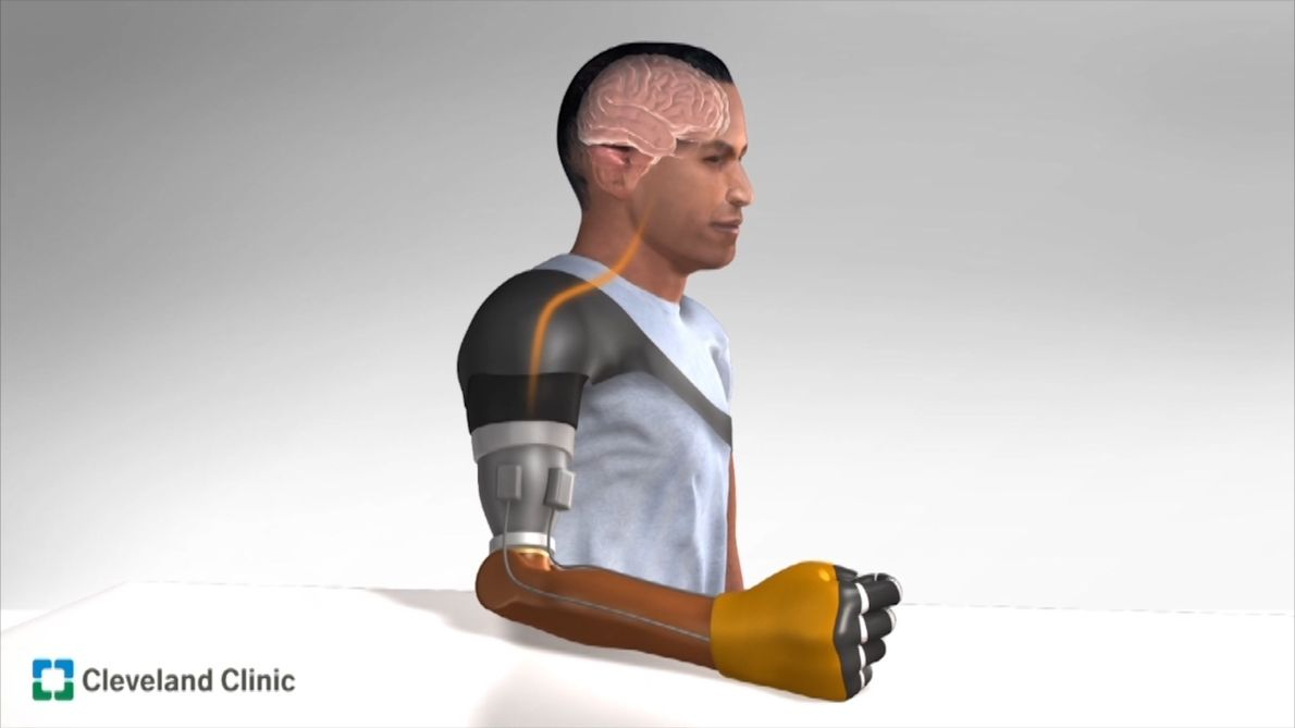 Video: Sensation of Movement Recreated in Amputees' Robotic Arms
