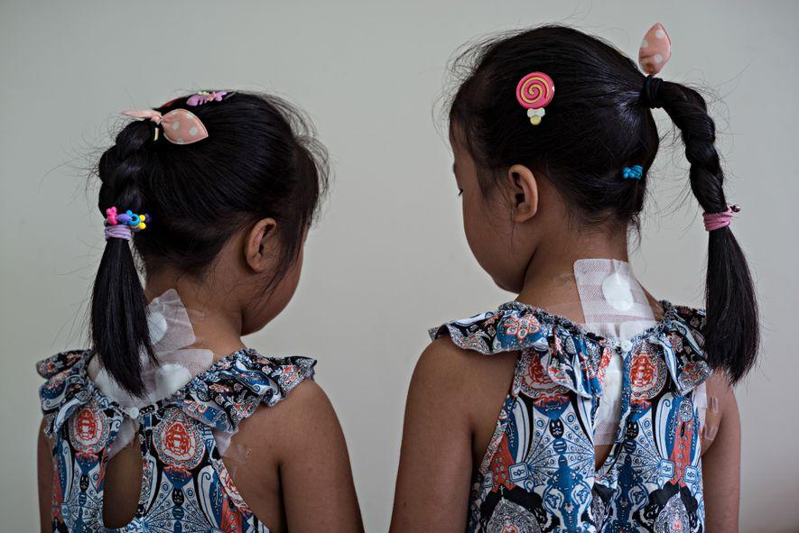 At China's Chengdu University of Traditional Chinese Medicine hospital, twin sisters Zheng Yue and Zheng Hao ...