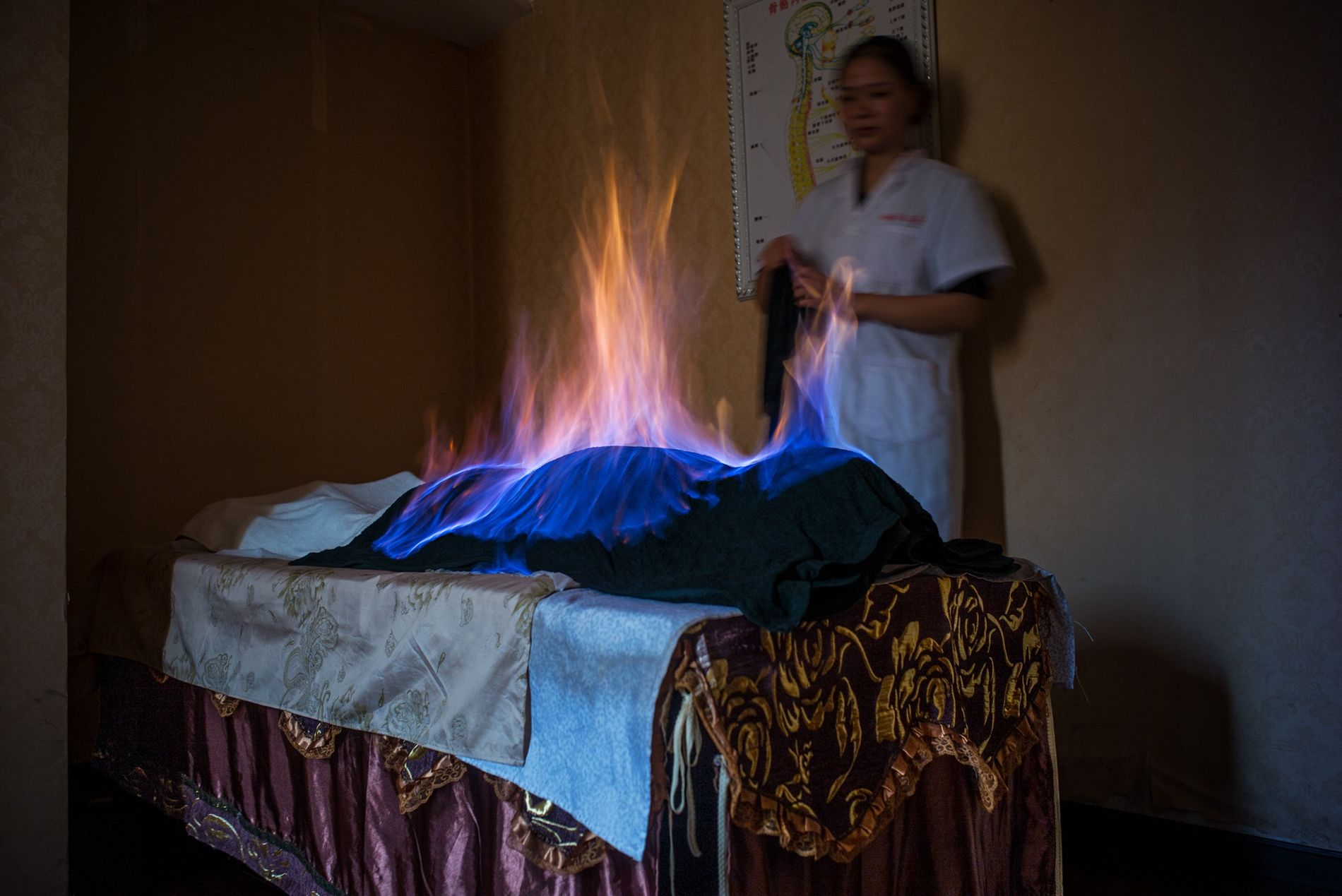 In a fire treatment session in Chengdu, an alcohol-soaked cloth is draped over a patient and ...
