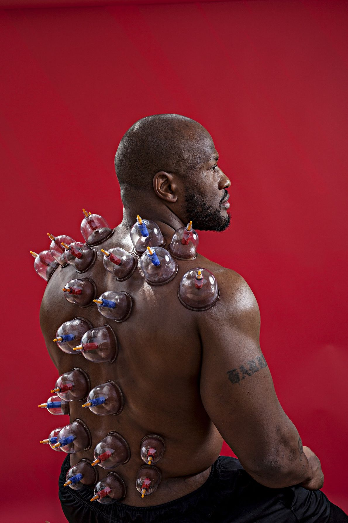 After a weightlifting workout, James Harrison received a Chinese cupping treatment, in which a therapist uses ...