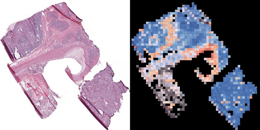 Correctly identifying the cancer cells in a lung tissue sample (left) is key to successful treatment. It's also an ideal diagnostic use of artificial intelligence. In one study, the same AI that Google uses to identify objects online was trained to recognise forms of cancer. It then found two forms in a tissue sample (right) as accurately as a human could, in seconds. AI also has been used to model the precise dosage of a cancer drug to shrink tumors but cause minimal toxic side effects. Lori Cuthbert For the sample at left, AI produced the analysis at right, showing normal lung tissue (gray) and two forms of cancer: adenocarcinoma (red) and squamous cell carcinoma (blue).
