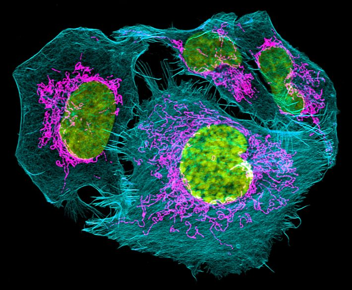Better Prostate Cancer Analysis