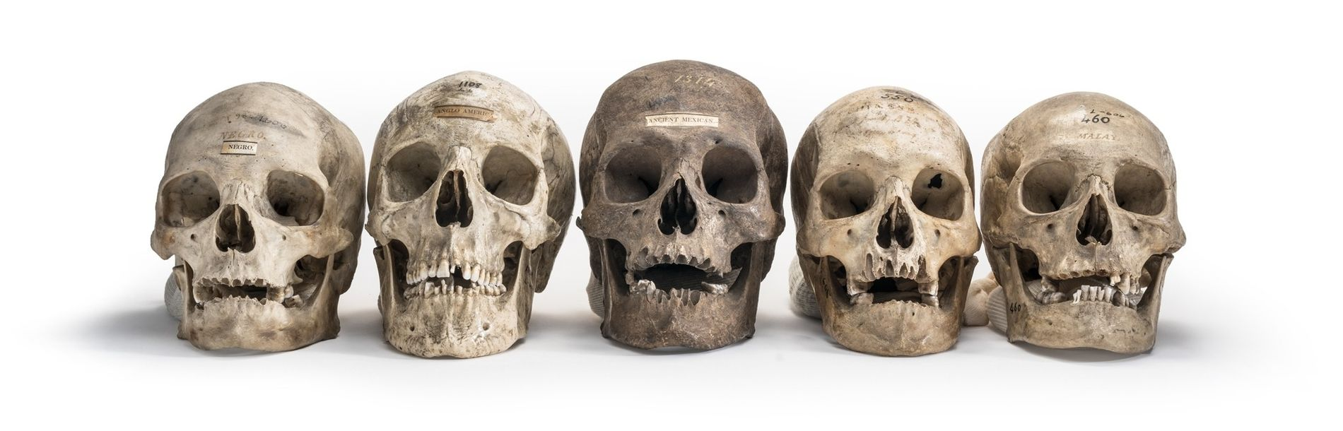 Skulls from the collection of Samuel Morton, the father of scientific racism, illustrate his classification of ...