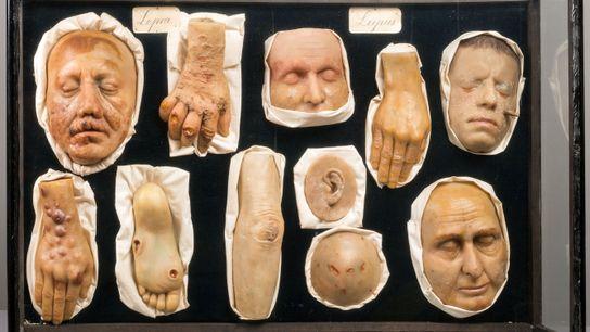 morbid anatomy wax