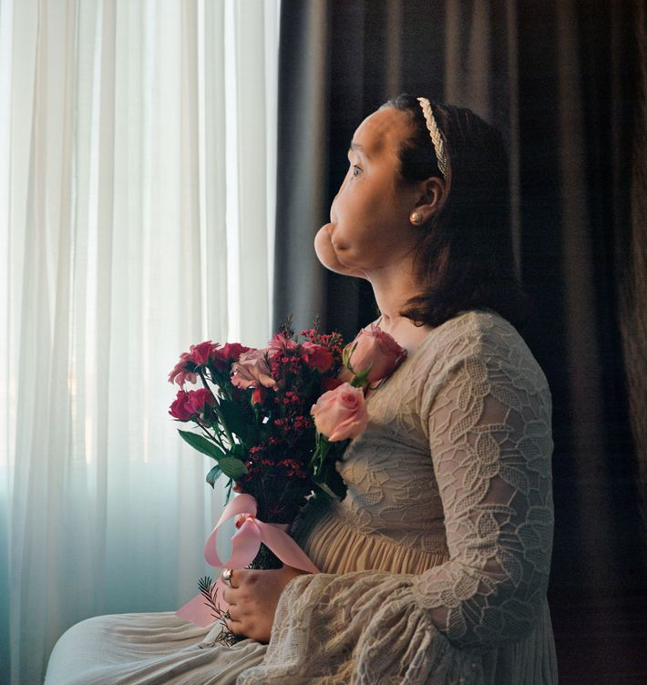 Before Katie Stubblefield had a face transplant, she posed for this portrait. It shows her severely ...