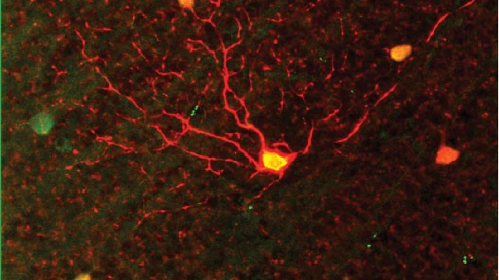 Seen under a microscope, this cell in a mouse retina becomes a generalist to help pick ...
