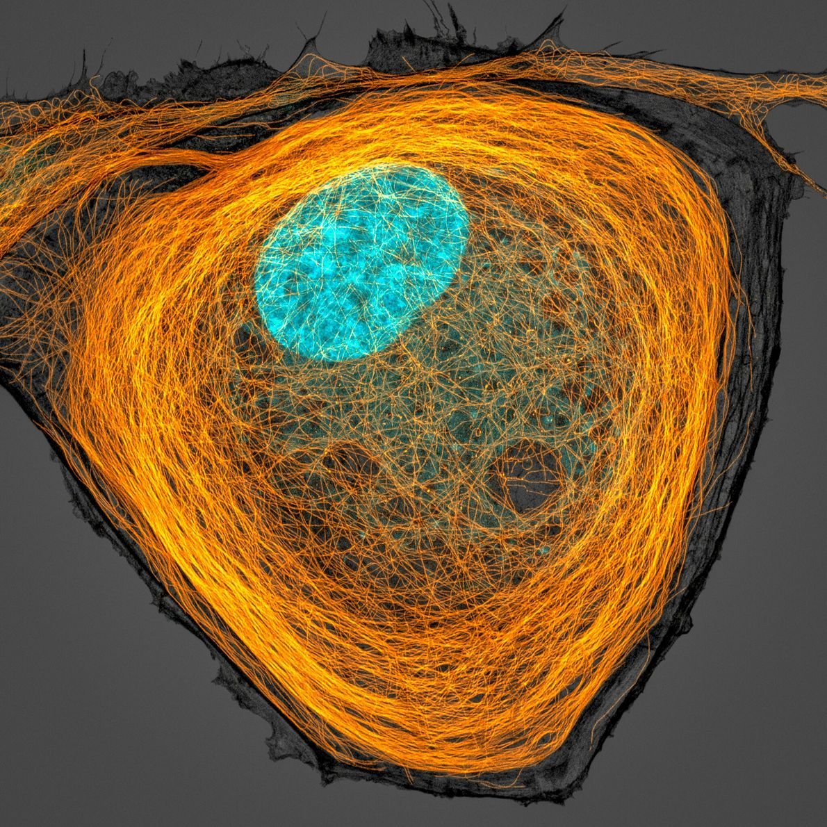 Jason Kirk of the Baylor College of Medicine captured a brightly stained nucleus (cyan) surrounded by ...
