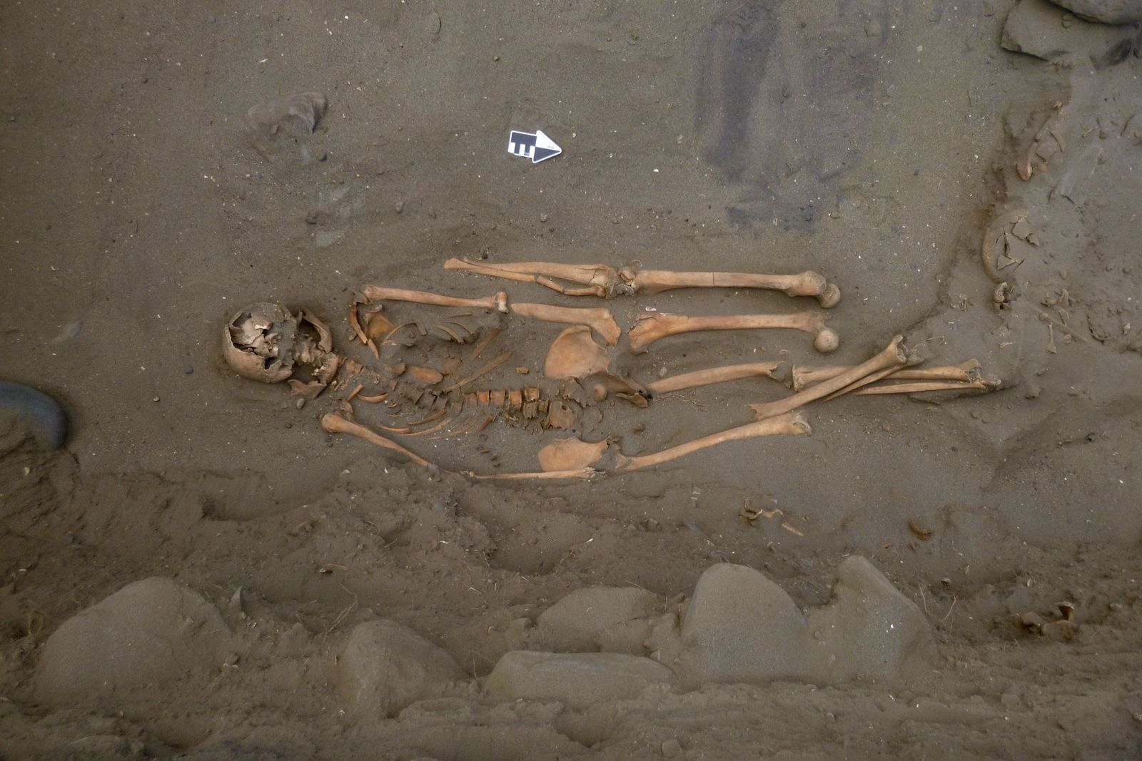 Ancient Shark Fishermen Found Buried with Extra Limbs