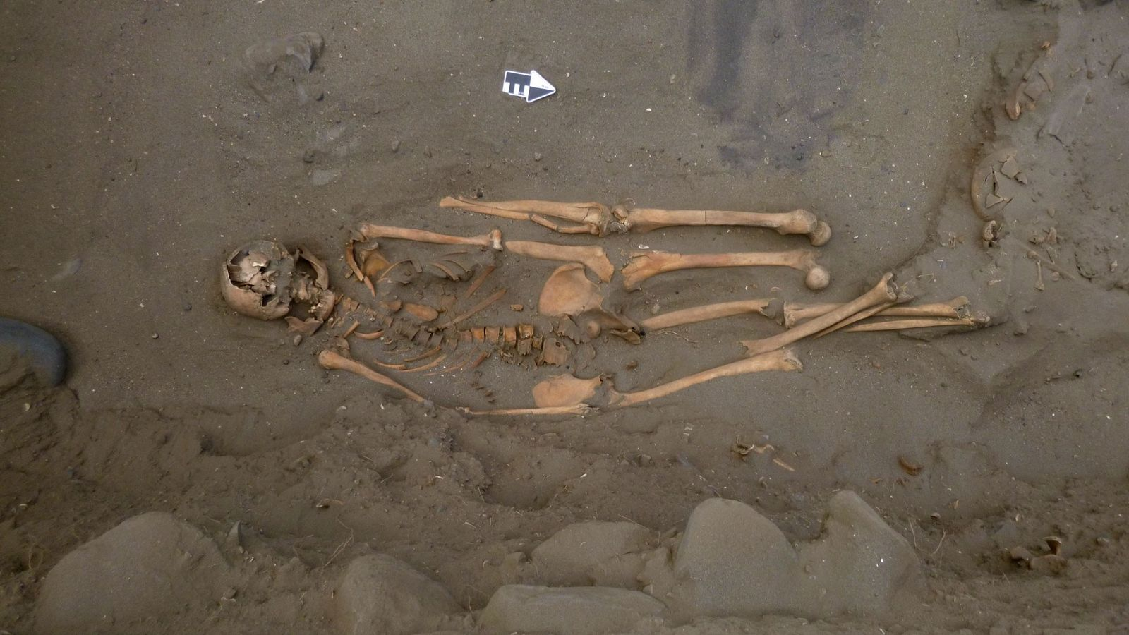 This ancient burial held a surprise for archaeologists: Two additional left legs were buried alongside the ...