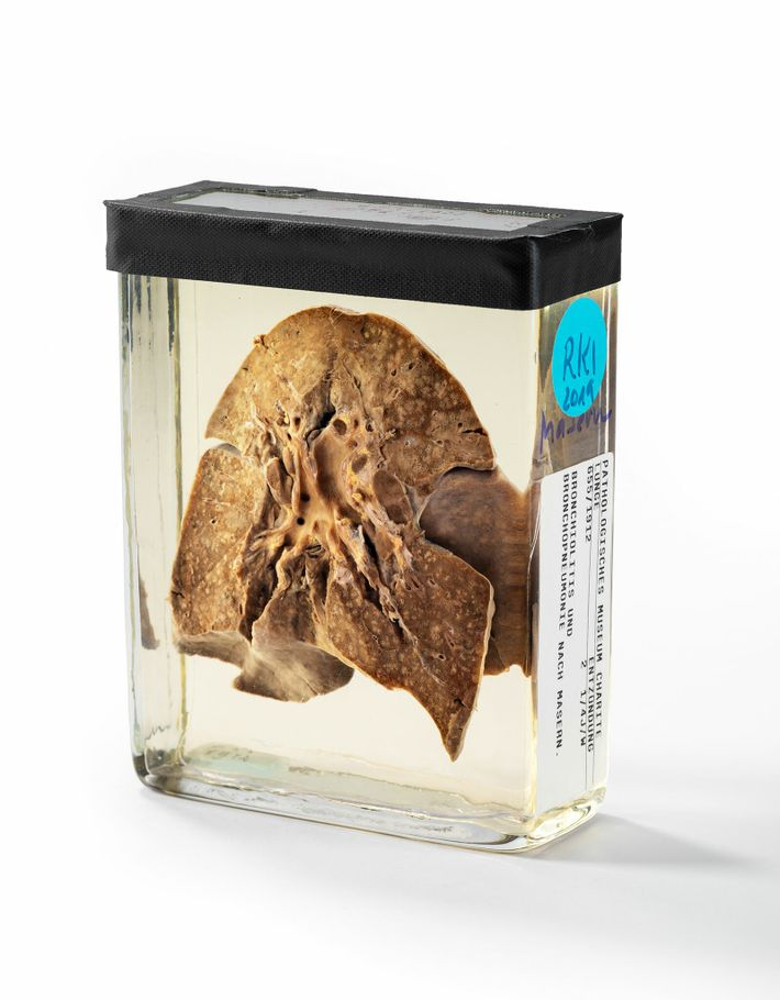 The preserved lungs of a two-year-old girl who died in 1912 at the Charité, a hospital ...